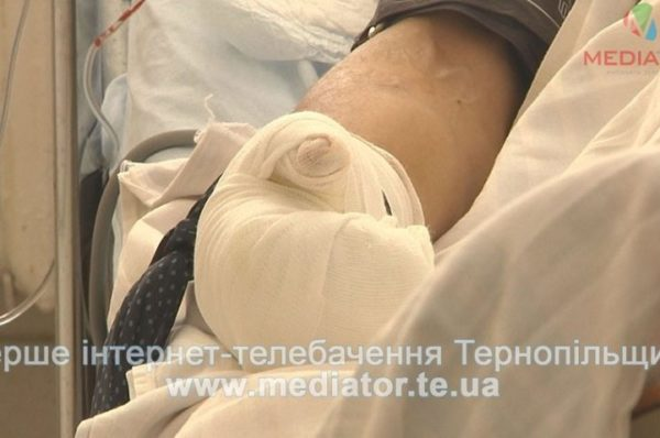 Тернополянка, через яку вибухнула квартира на Пушкіна, вже намагалася покінчити з життям (Відео)