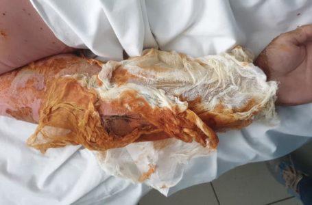 У Росії житель Тернопільщини впав у кислоту: у чоловіка 70% опіків тіла, стан критичний (Фото +18)