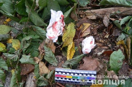 На голову впала суха гілка: травмований мешканець Бережанщини у важкому стані
