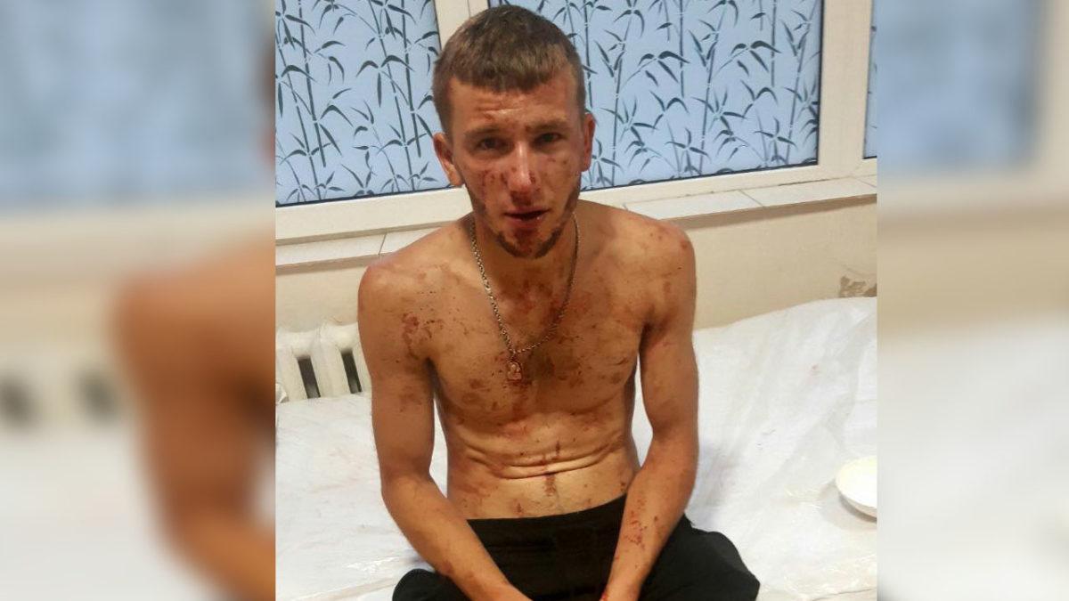 Переламані щелепа й ніс. На Тернопільщині побили хлопця до втрати свідомості (Фото)