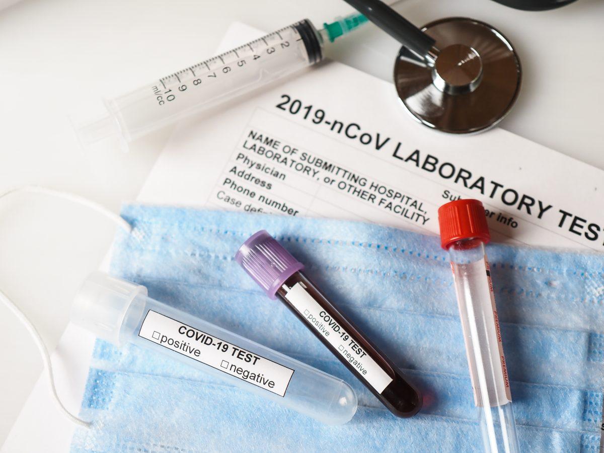 На Тернопільщині +163 випадки зараження вірусом COVID-19